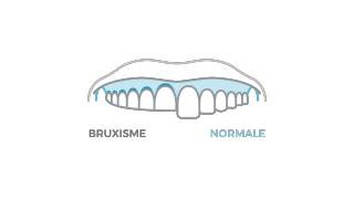 Bruxisme et usure dentaire, solution et prévention